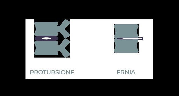 Protursione - Ernia